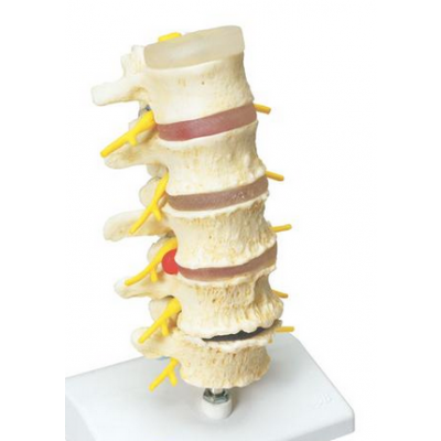Stages of Disc Prolapse and Vertebral Degeneration